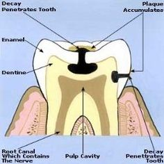 Home Remedies For Toothaches - Natural Treatments & Cure For Toothaches   Search Home Remedy