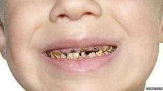 Child tooth removal 'at crisis point', doctors warn - BBC News. Doctors are calling for urgent action to reduce the number of children needing to have rotten teeth removed under general anesthetic in hospital.  http://www.bbc.com/news/health-33498324