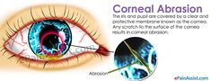 Causes of Corneal Abrasion include foreign object in the eye such as dirt, gravel bits of paper blown into the eye because of wind. Know the causes, symptoms, treatment: antibiotic eye drops and pain killers. Eye Pain, Eye Drops, Disorders, Nursing, Healthy Lifestyle, Health Fitness, Nutrition, Healthy Living, Fitness