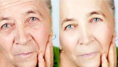 Finally, Something That Works Better Than Botox: A New Fantastic Masks That Removes Wrinkles And Stains From Your Face And Make You To Look 10 Years Younger!