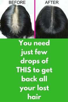 You need just few drops of THIS to get back all your lost hair Step 1 – Hair pack You will need 3 spoon aloe vera gel 2 spoon castor oil 1 spoon cinnamon powder In a clean bowl mix all of them and your hair pack is ready Apply this pack on your scalp and hair. Leave it for 1 hour Wash your hair with plain water Pack …
