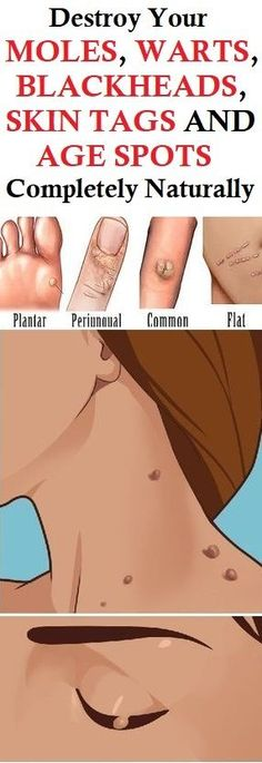 Skin Remedies Destroy Your Moles, Warts, Blackheads, Skin Tags And Age Spots Completely Naturally Skin Care Remedies, Natural Remedies, Homeopathic Remedies, Health Remedies, Sleep Remedies, Cold Remedies, How To Get Rid, How To Remove, Brown Spots On Face