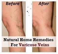 This NATURAL Ingredient Will Help You Get Rid of Varicose Veins in Just 3 Days