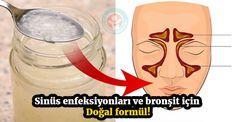 Sinüs enfeksiyonu ve bronşit için doğal formül