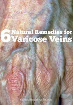6 Natural Remedies for Varicose Veins