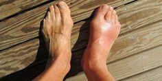 Medische deskundigen definiëren jicht als een aandoening van zwelling, stijfheid en constante ondraaglijke pijn in de gewrichten. Jicht treft meestal de voeten, met name de grote teen, waardoor ond…