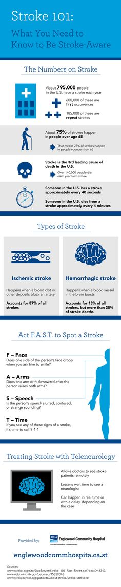 Acting F.A.S.T. is important when it comes to spotting a stroke! F stands for face. A stands for arms. S stands for speech. T stands for time. Check out this Venice, FL emergency room infographic to see what all of these mean.
