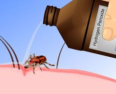Info about ticks incl, how to remove them. A small percentage of tick bites will lead to Lyme disease. This site has important info. http://www.wikihow.com/Remove-a-Tick