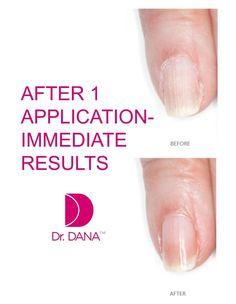 Dana manicure kit - The Beauty Guide - Best Manicure Kit Nail Care Routine, Nail Care Tips, Damaged Nails, Brittle Nails, Beauty Guide, Healthy Nails, Glycolic Acid, Elle Magazine, Nail Treatment