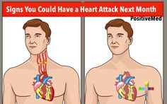 Signs & Symptoms That You Could Have a Heart Attack Next Month