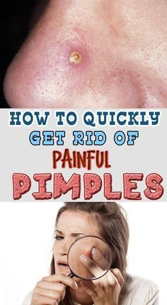 How to quickly get rid of painful PIMPLES!