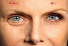 How to Get Rid of Undereye Bags, Once and for All