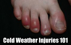 Cold Weather Injuries 101, cold weather, winter, chilblains, frostbite, remedies, heath, first aid, shtf, prepping,