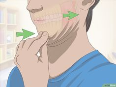 How to Treat Temporomandibular Joint Disorder (TMD) with Jaw Exercises. Temporomandibular Joint Disorder (TMD) is characterized by pain, tenderness, and compromised movement of the temporomandibular joints (TMJ) and muscles of mastication. Jaw Exercises Tmj, Facial Exercises, Migraine, Jaw Clenching, Double Menton, Jaw Pain, Oral Surgery, Trouble, Physical Therapy