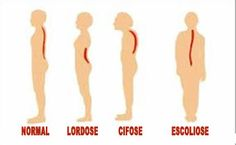 Scoliosis Tips And Techniques For Loving Vegetarian Foods Scoliosis Exercises, Posture Exercises, Pilates Moves, Pilates Workout, Med Student, Student Life, Chiropractic Quotes, Science Illustration, Sports Massage