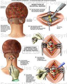 Occipital Neuralgia...                                                                                                                                                      More