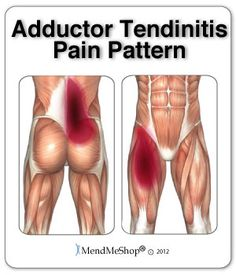 Anatomy On Pinterest Anatomy Muscle And Hip Pain