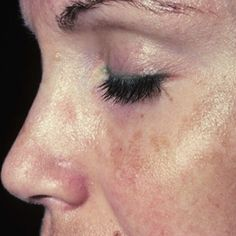 Natural Cures For Melasma. Women who are pregnant can get this when in the sun.