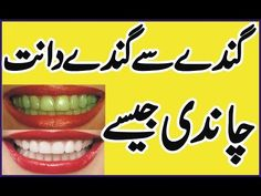 Teeth Whitening Tips in Urdu/Hindi Hair Tips In Urdu, Beauty Tips In Hindi, Beauty Tips For Teens, Beauty Tips For Skin, Skin Tips, Beauty Skin, Skin Care Tips, Beauty Hacks, Daily Beauty