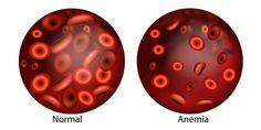 Semne care arata ca aveti deficit de fier - Farmacia Ta Anemia Aplástica, Youtube, B12 Deficiency, Iron Deficiency, Hormone Imbalance, Blood Test, Kidney Failure, Signs, Natural Treatments