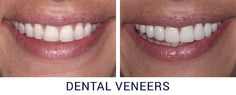 simple dental bonding - whitening session, porcelain fillings - just 3 hours of dental works give you younger look and self confidence