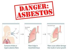 The causes of asbestosis are actually quite limited. This lung disease is almost exclusively the result of exposure to asbestos fibers in some form for a prolonged length of time.