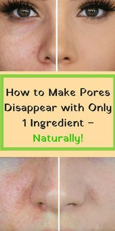 Beauty Remedies Get a Clean Face Free Of Pores Using This Amazing Natural Ingredient! - The most common problem that people with oily skin are experiencing is large pores. The main cause of this problem is dirt and bacteria which are irritating your skin.