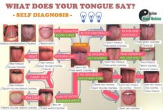 Tongue Diagnosis Chart Self Std Human Anatomy