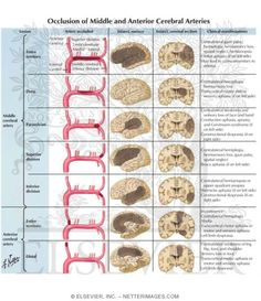 Occlusion of Middle and Anterior Cerebral Arteries Arteries Anatomy, Brain Anatomy, Human Anatomy And Physiology, Medical Anatomy, Brain Science, Medical Science, Icu Nursing, Pharmacology Nursing, Nursing Schools
