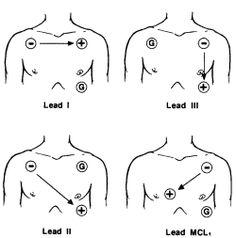 Ecg Electrode Placement Diagram