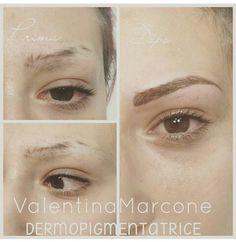 Prima dopo permanent make-up  Sopracciglia tatuate affetto naturale pelo pelo alopecia tatuaggio trucco semipermanente permanente microblanding  Esperti del settore