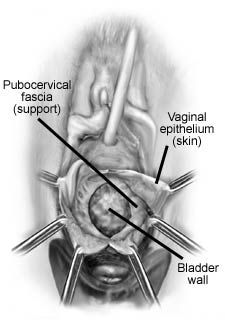 Information about Repliform as well as the anterior surgery option. Pelvic Floor prolapse, cystocele, bladder.
