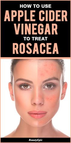 to Use Apple Cider Vinegar to Treat Rosacea? Rosacea is a chronic condition in which is characterised by red face due to persistent redness, red spots, dry skin etc.apple cider vinegar for rosacea Warts On Hands, Warts On Face, Rosacea Remedies, Skin Care Remedies, Red Face Remedies, Homeopathic Remedies, Health Remedies, Belleza Diy, Tips Belleza