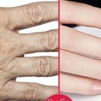 Uygulayın; ellerinizdeki kırışıklıklar 7 gün içinde yok olacak...