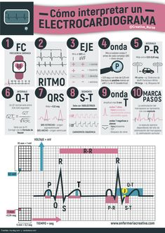 Cómo interpretar un electrocardiograma Como interpretar un ECG para enfermería Medical Facts, Medical Science, Medical School, Med Student, Medicine Notes, Cardiac Nursing, Medical Anatomy, Nursing Notes, Med School
