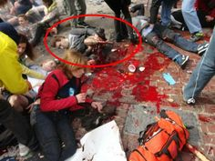 Pictures That Prove Double Amputee Was An Actor at Boston Bombings…