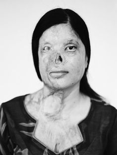 """I decided to travel to Pakistan to pursue documentary work about women who had suffered brutal acid attacks."" Demavlys Izabella, photographer."