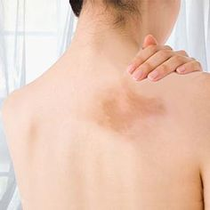 Skin Discoloration On Back how to get rid of hyperpigmentation here http://meladermpigmentreducingcomplex.org/