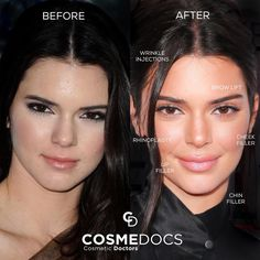 She looks amazing! I can't wait to get a nose job and maybe a brow lift at the ends. Face Plastic Surgery, Plastic Surgery Photos, Celebrity Plastic Surgery, Kendall Jenner Nose Job, Kendall Jenner Plastic Surgery, Face Injections, Face Fillers, Eyebrow Lift, Beauty Makeover
