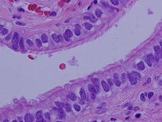 SIMPLE COLUMNAR  Histology and Skin Flashcards   Quizlet