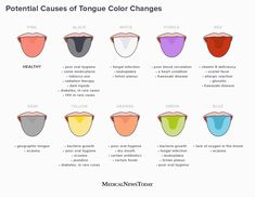 Changes in tongue color can reflect changes in health. Learn more about the health conditions that can change the color and texture of the tongue here. Heart Conditions, Medical Conditions, Vitamin B Deficiency, Types Of Rashes, Kawasaki Disease, Rare Disorders, Radiation Therapy, Rare Disease, Fungal Infection