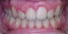 Ortodonti Tedavi Sonrası Diş Teli Tedavisi Sonrası