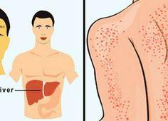 12 manieren waarop je lichaam je probeert te vertellen dat je lever beschadigd raakt.. Disney Characters, Fictional Characters, Medicine, Disney Princess, Van Gogh, Detox, Website, Health, Salud