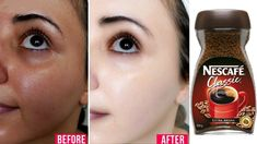 In just your skin become milky white - Apple Fair Skin Home Remedies, Tan Removal Home Remedies, Skin Care Remedies, Clear Skin Face, Face Skin Care, Beauty Tips For Glowing Skin, Health And Beauty Tips, Natural Skin Whitening, Natural Skin Care