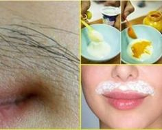 How to Remove upper lip hair naturally? Unwanted hair on the upper lip is such a nuisance! Girls understand this better. The hair growth differ from woman to woman, some have more, some are blessed with less. Remove Unwanted Facial Hair, Unwanted Hair, Beauty Care, Beauty Hacks, Beauty Tips, Upper Lip Hair, Tips Belleza, Laser Hair Removal, Health And Beauty