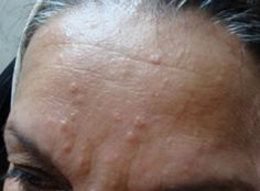 white bumps on face