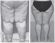lipedema, lipoedema, big fat legs, fat legs pain, lymphedema, lipo-lymphedema, big fat legs syndrome, joint issues and obesity, knee arthritis, mobility and obesity, hypothyroidism, low Vitamin D