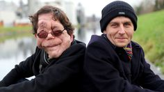 My Amazing Twin | The acerbically witty and severely facially disfigured broadcaster Adam Pearson presents a personal film about genetics. Adam and his twin Neil both have Neurofibromatosis 1, but they're completely different.