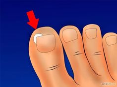 Image intitulée Get Rid of Ingrown Toenails Step 7