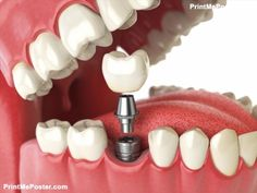 How long do dental implants last. Pictures of dental implants. Same day dental implants. all about dental implants. Dental Implant Procedure, Teeth Implants, Dental Surgery, Dental Implants, Implant Dentistry, Dental Procedures, Cosmetic Procedures, Tooth Replacement, Emergency Dentist